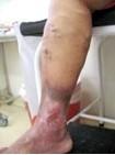 ulcera na perna digitador ergonomcs